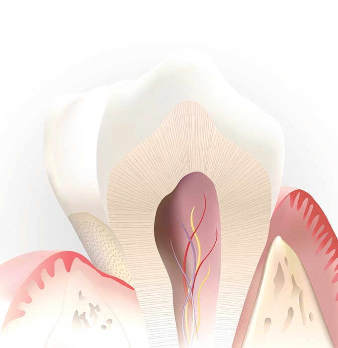Animated inside of tooth after pulp therapy