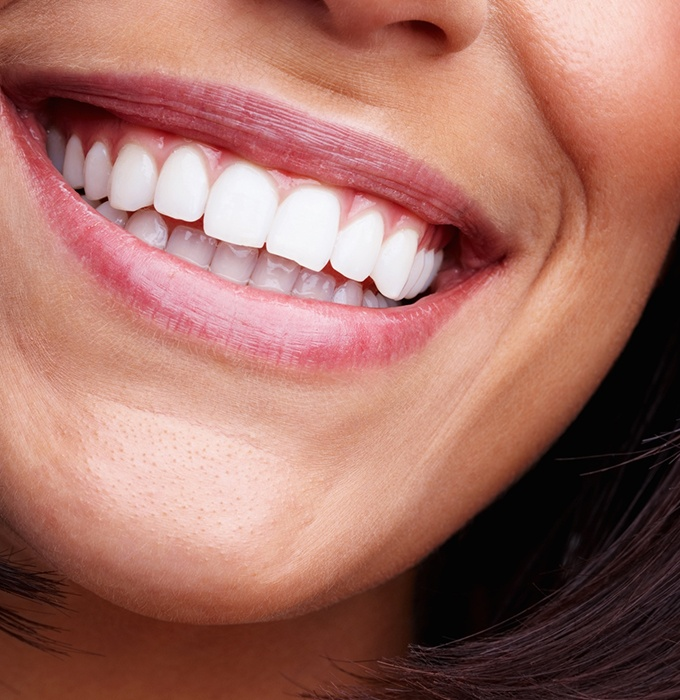Closeup of smile after teeth whitening