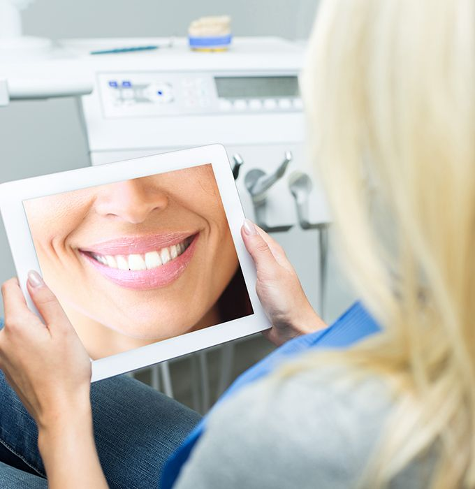 Woman looking at her virtual smile design