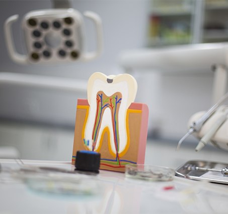 Model of the inside of a tooth in need of root canal therapy