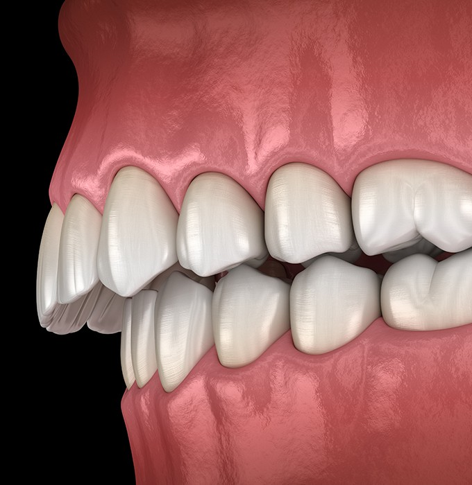 Animated smile in need of equilibration and occlusal adjustment